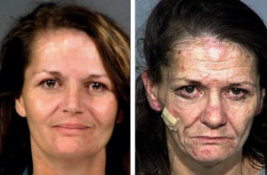 before and after crystal meth